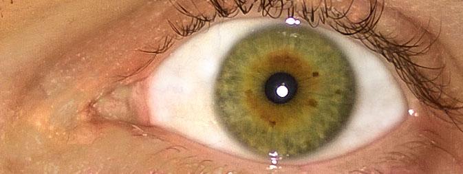 Øjenfarver og helbred